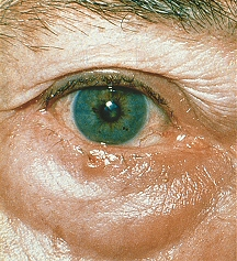 Eyelid Skin Cancer