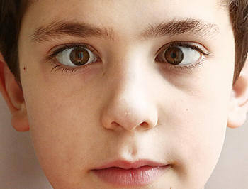Child with Strabismus Center