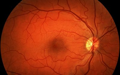 AMD Is the Leading Cause of Blindness in Adults 65 & Older